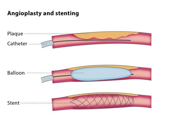 Angioplasty and stenting – CIRSE