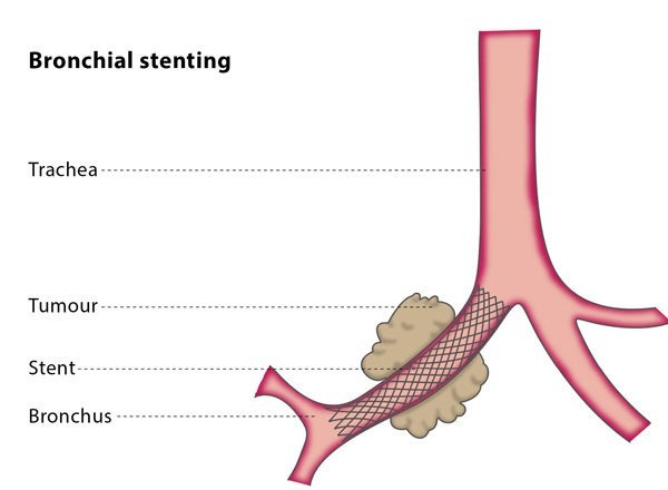 Bronchial stenting – CIRSE