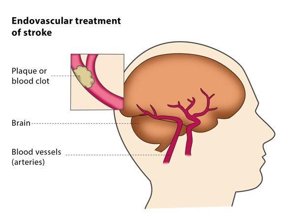 Endovascular treatment of stroke – CIRSE