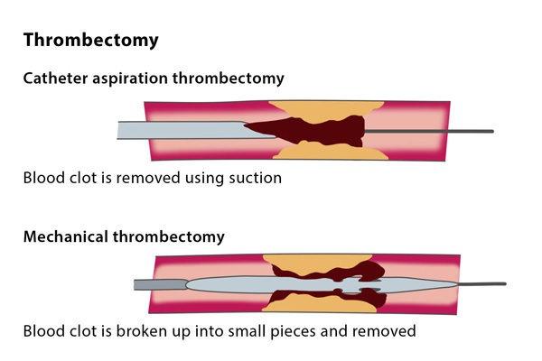 Thrombectomy – CIRSE